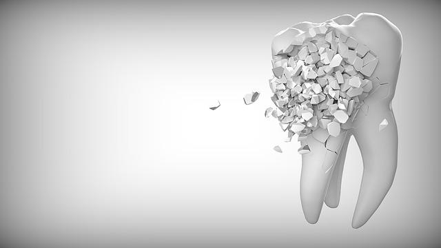 Il faut toujours faire attention lorsqu'il s'agit d'une Urgence Dentaire