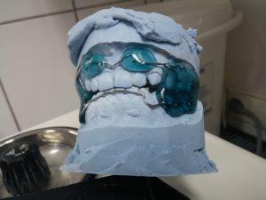 Les gouttières transparentes qui seront la solution d'Orthodontie la plus adéquate
