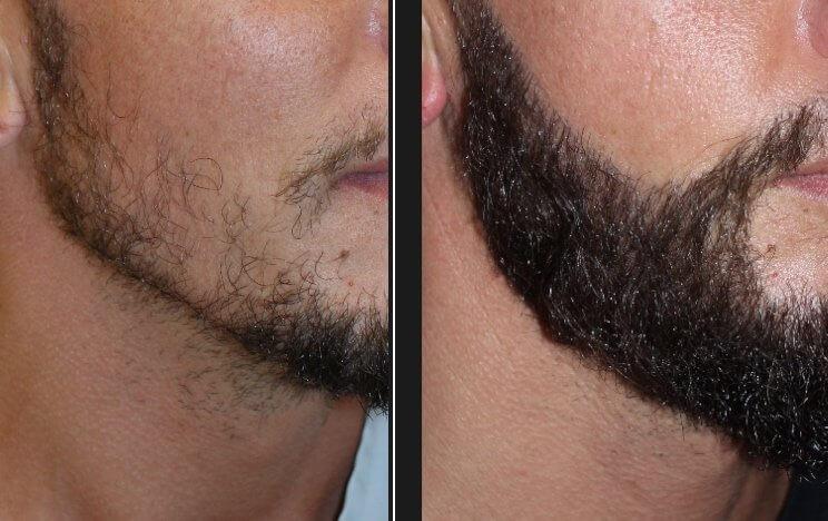 Les dernières tendances en matière de greffe de barbe