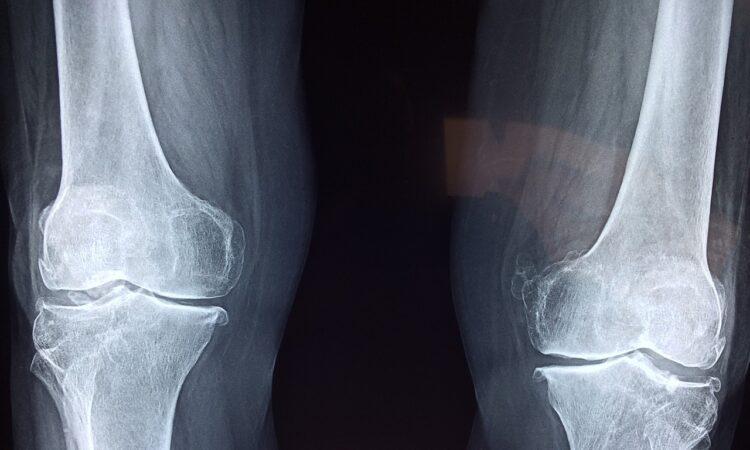 Genouillère orthopédique